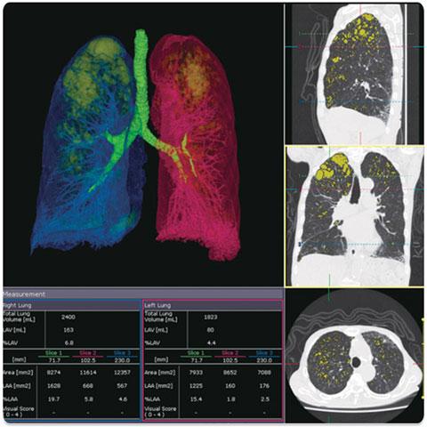 Lung Volume Analysis